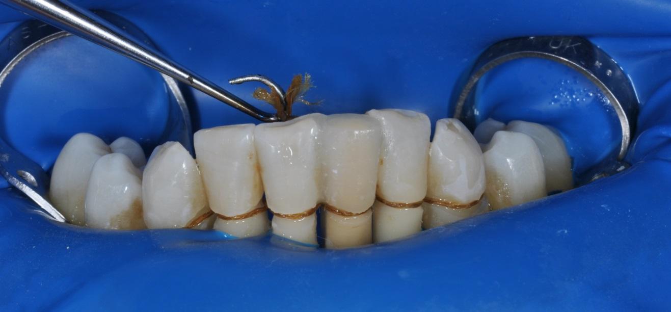 Шинирование стекловолоконной лентой или как предотвратить расшатывание и выпадение зубов