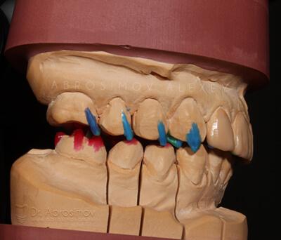 Основы моделирования зубов - презентация онлайн